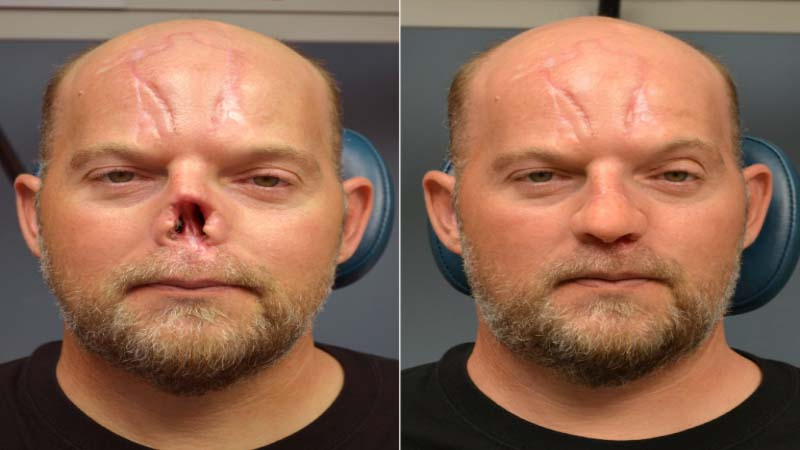 Cancer Patient with destroyed Nose recovers with 3D Printing