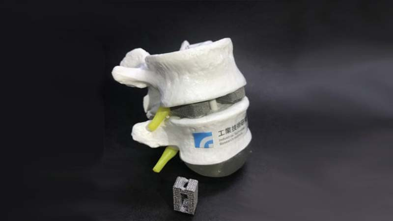 3D Printed Bones especially for Ethnically Chinese People by ITRI