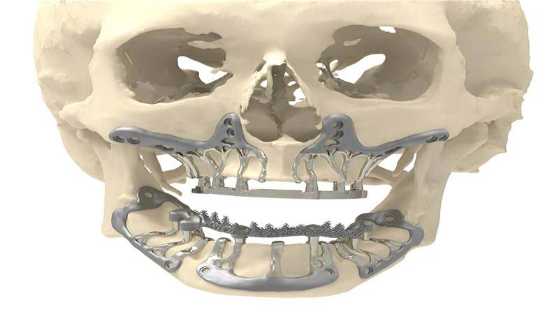 CADskills Titanium 3D Printed Implants is the solution to Bone Atrophy