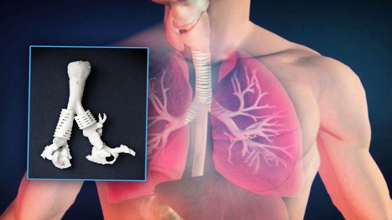 Trachea Without Tissue Scaffolds 3D Printing Advancements