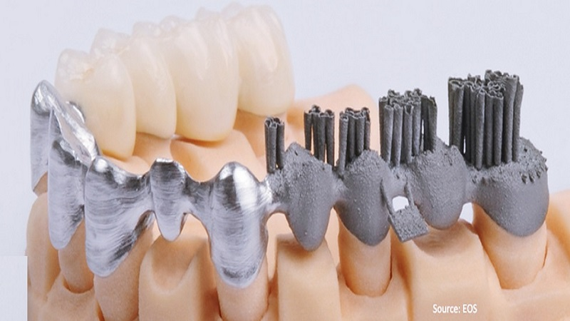 Indian Researchers Evaluate Traditional Metal Manufacturing Methods Against 3D Printing For Dental Copings