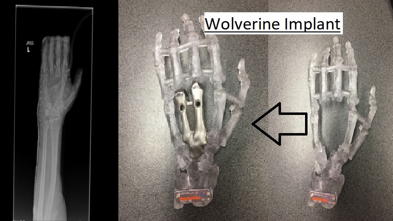 Man Gets Wolverine Like 3D Printed Titanium Metacarpal Implant