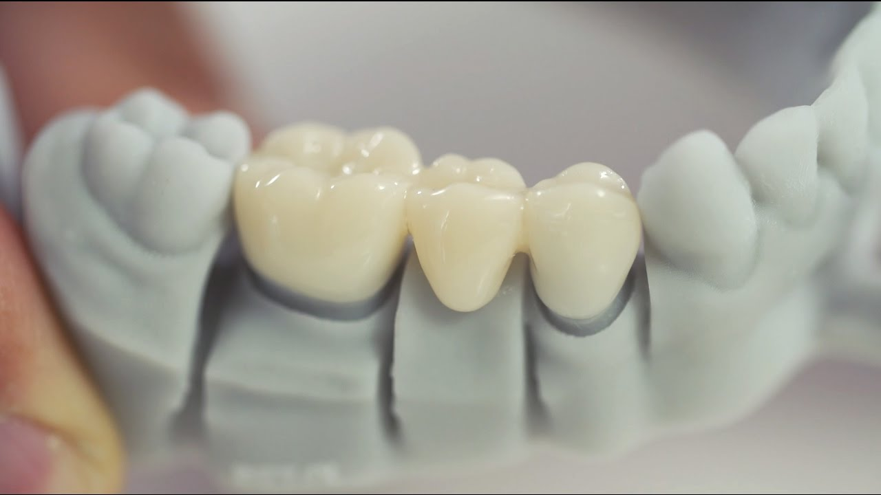 Researchers Work On New High Resolution 3D Printing Process Called TCMIP SL For Dental Crowns