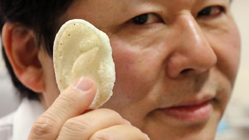CT Bone Implants By Next 21 Gets Approved In Japan And Europe