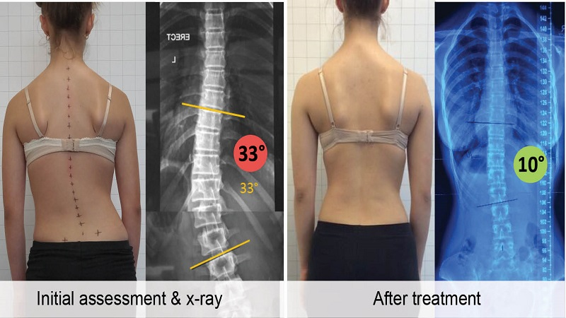 Surgery For Scoliosis Gets Even Better