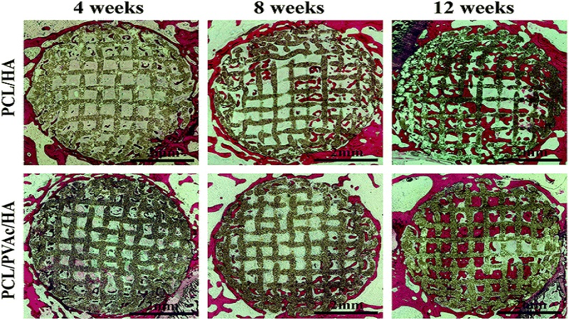 Researchers Select The Winner Scaffold For Bone Formation With 3D Printing