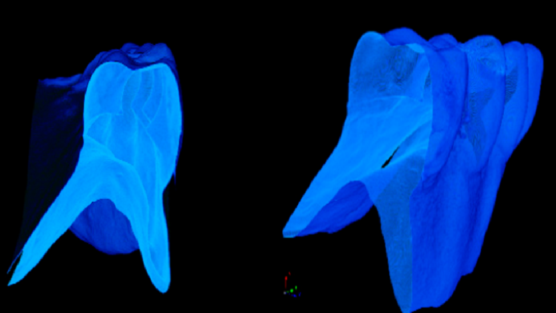 3D Printed Dentures Made With Hybrid Nanocomposite Yield Excellent Results
