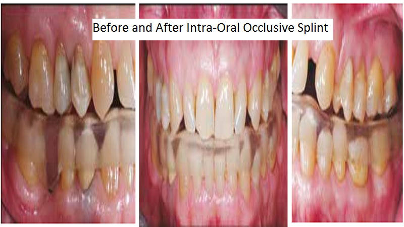3D Printed Intra Oral Splint Used To Relieve Jaw Pain