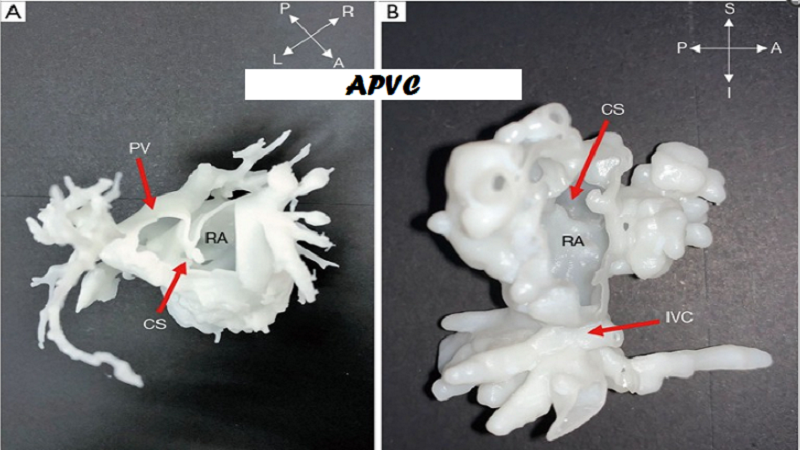 3D Printed Surgical Models Provide Insights To Rare Congenital Heart Disease