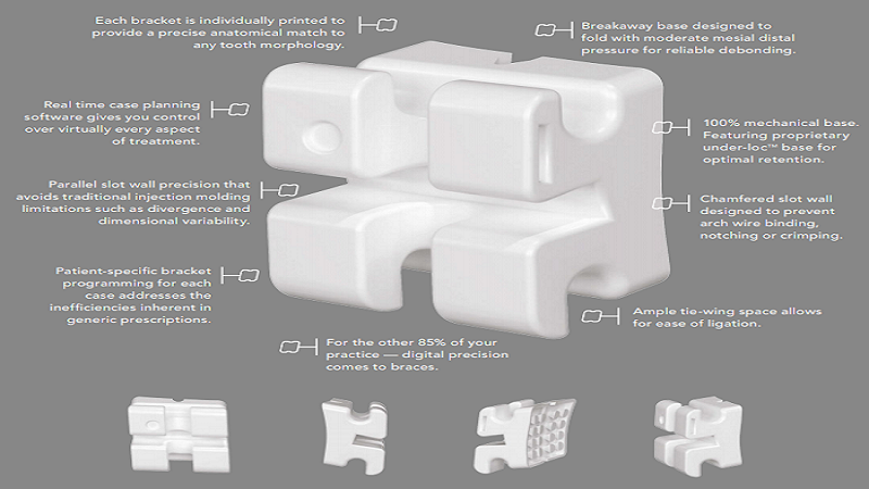 LightForce Orthodontics Revolutionises Dental Braces By Customized 3D Printed Bracket System