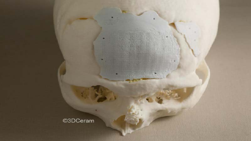 3D Printed Cranial Implants by 3DCeram