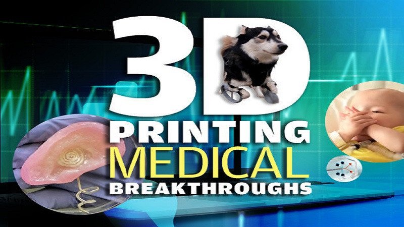 3D Printing Medical Breakthroughs