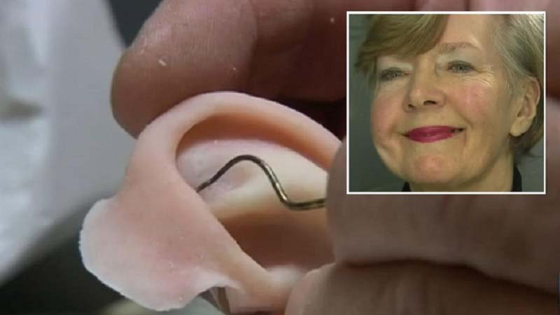 Aussie woman receives 3d printed Ear