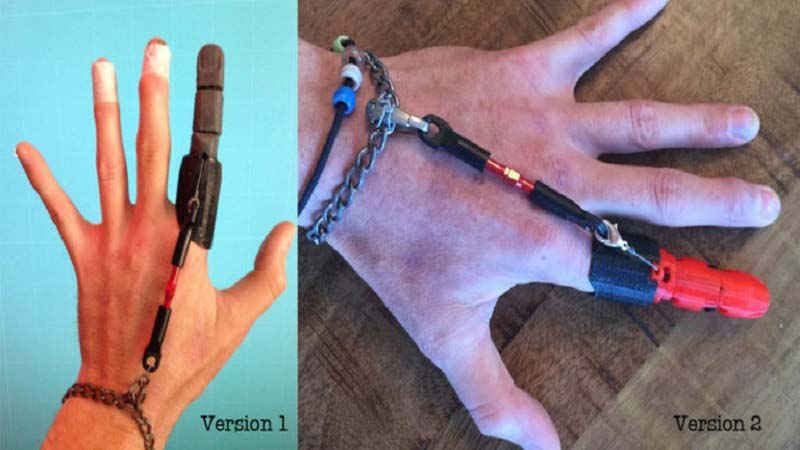 3D Printed Partial Finger Prosthetic