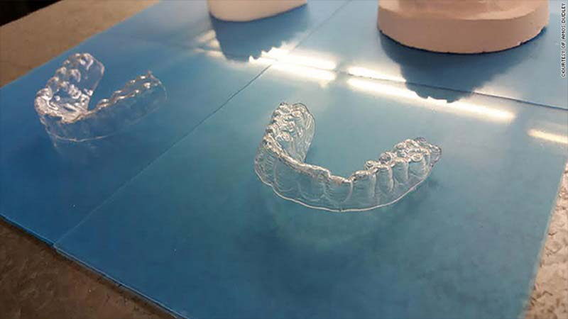 Student 3D Prints OrthoPrints for Teeth Aligment