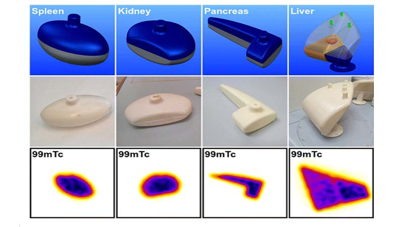 3D PRINTED PHANTOMS FOR MOLECULAR RADIOTHERAPY DOSIMETRY