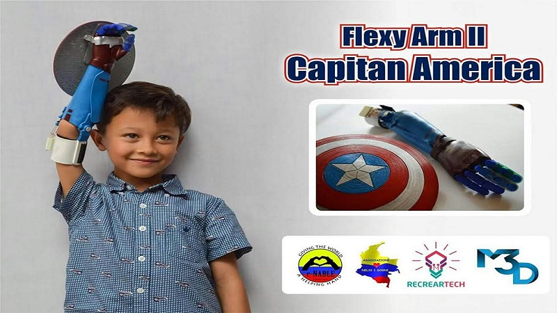 Colombia Kid receives Captain America 3D Printed Hand