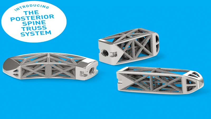 4Web launches Posterior Spine Truss