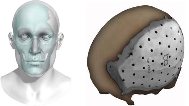 BioArchitects 3D printed titanium cranial plate grabs FDA approval